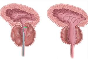 Lézer a prosztatitis fizioterápiájához A prosztatitis miatti depresszió